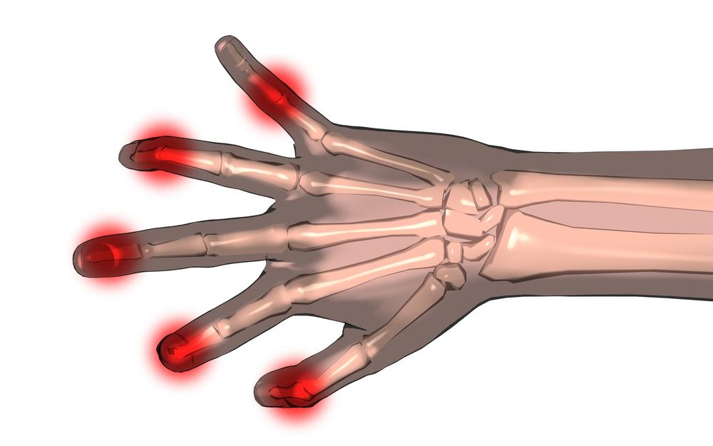 arthritis myths