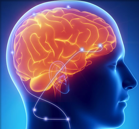 Brio neurostimulation system
