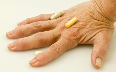 Arthritis Fingers