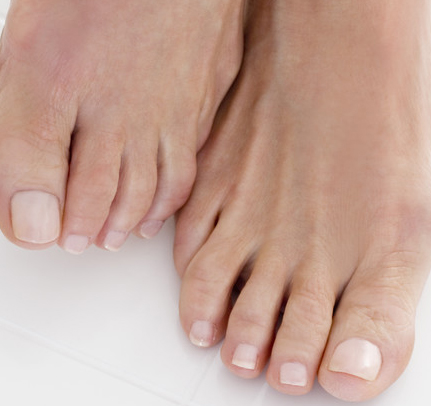 Women Love Wearing Open Toe Shoes And Sandals But Not So Much When They Are Experiencing A Toenail Fungus That Results In Gross Looking Toenails